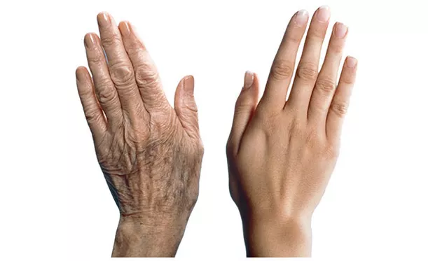 Two Simple Concepts About Aging